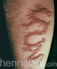 Black henna tattoo scar