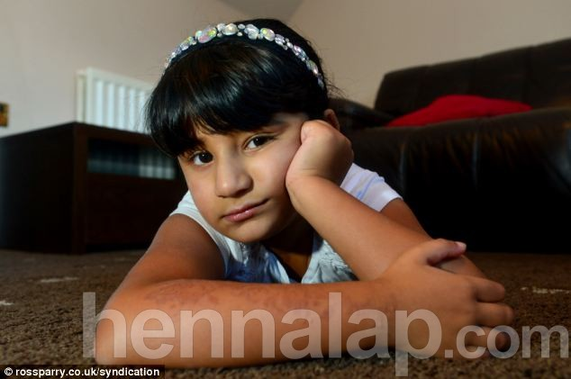 Sanah's mother Rehana Younis is now warning other parents of the dangers of the temporary black henna tattoos