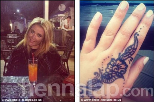 Ink for life: Emily Street, left, was left scarred for life on her left hand after having a henna tattoo whille on holiday in Bodrum, Turkey