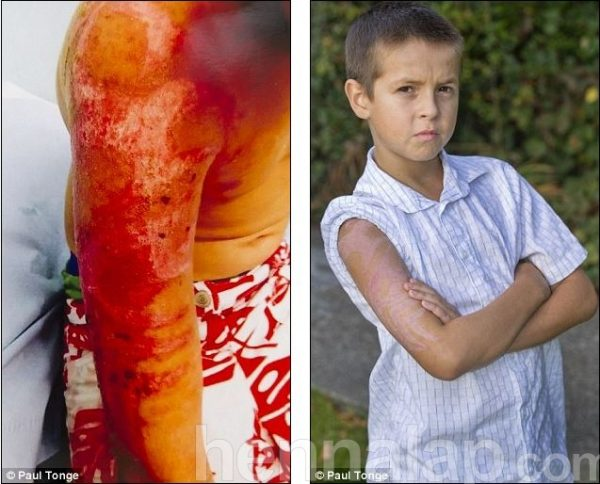 Reaction: Alfie Abbott, 11, suffered an extreme allergic reaction to the temporary ink, which left him with painful blisters on his upper arm (left). He has been left with visible scarring (right) which could be permanent