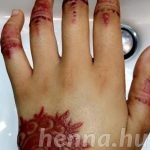 Woman rushed to emergency room after henna burns hands